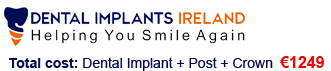 Contact | Helping You Smile Again | Dental Implants Ireland