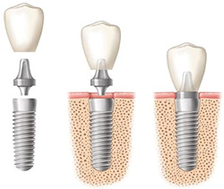 Essential Information | Helping You Smile Again | Dental Implants Ireland